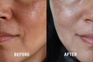 tác dụng của Vitamin C đối với làn da bạn
