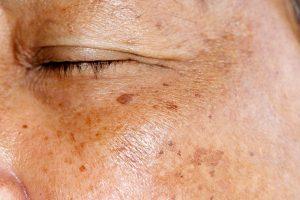 Vấn đề tăng sắc tố da là gì ?