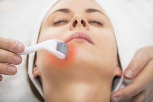 Sẹo mụn là gì? Nguyên nhân và phương pháp điều trị sẹo mụn